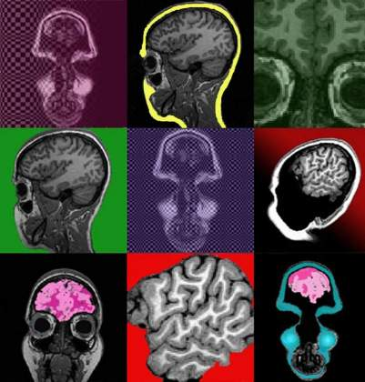Brain Storm | Hagar Goldberg, Neurobiology