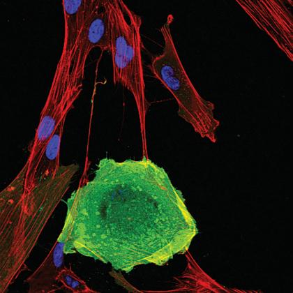 EliminateSenescent\ The role of elimination of senescent cells in cancer development